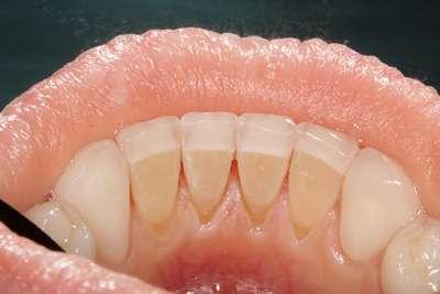 виниры пластины на зубы цена