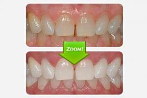 Viaila отбеливатель зубов