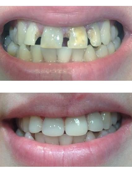 Виниры для 4 зубов
