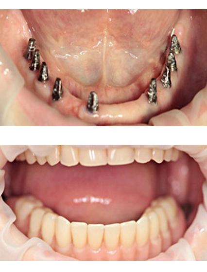 Зубные импланты сургут