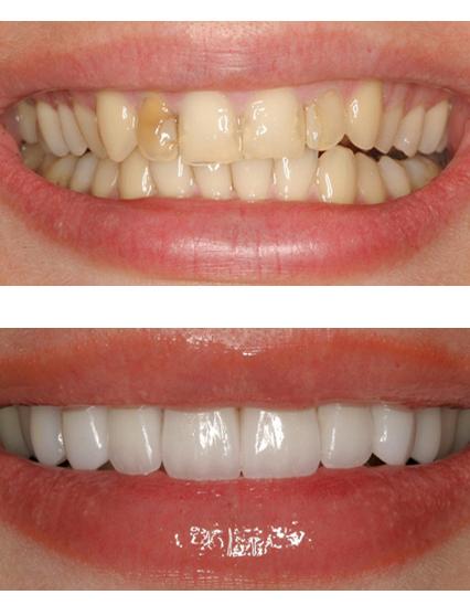 Виниры на зубы фото до и после
