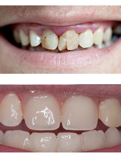 Виниры сколько стоит 1 зуб москва