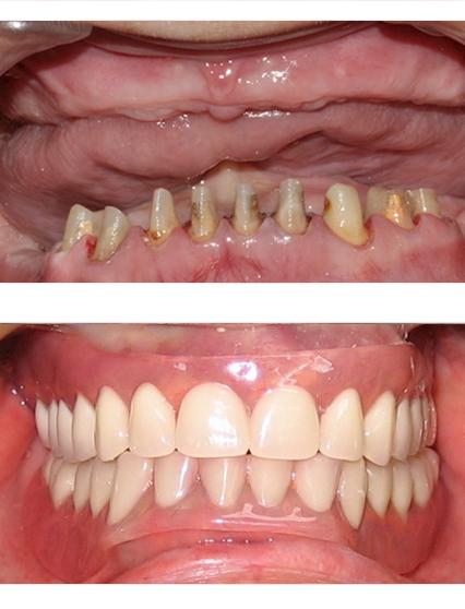 где купить зубные протезы виниры съемные
