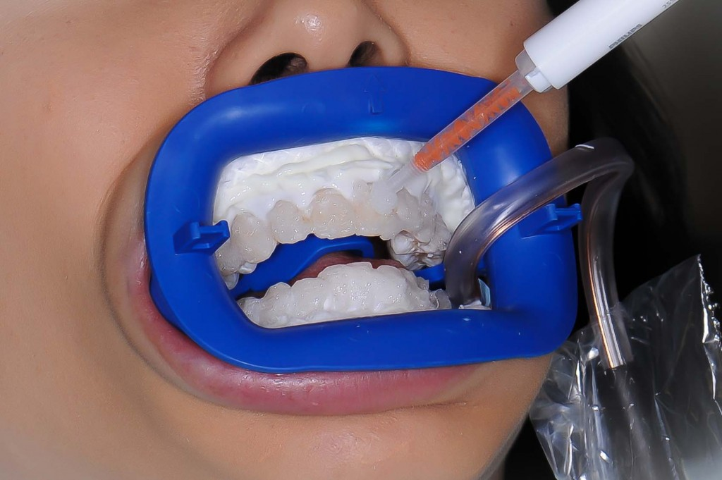 Zoom-Teeth-Whitening-Melbourne-2-1024x681.jpg